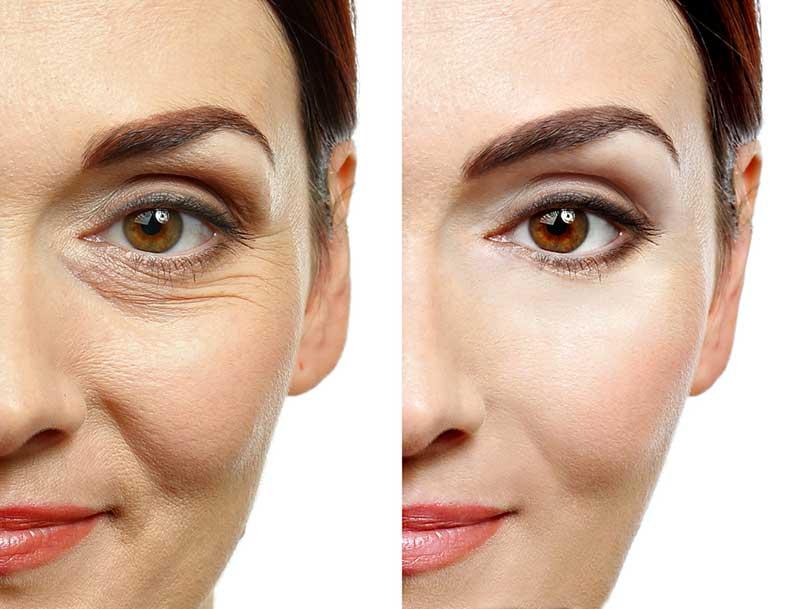 eye wrinkle ile ilgili görsel sonucu